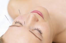 Acupuncture in Eugene