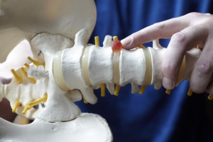 Eugene chiropractor treats back and neck pain